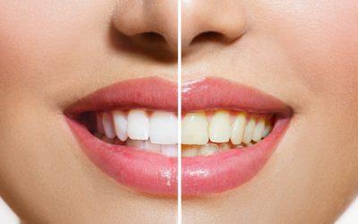 Albirea dentară cu laser – tot ce trebuie să știi înainte și… după!