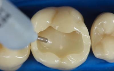 Tot ce trebuie să știi despre plomba dentară (obturația)