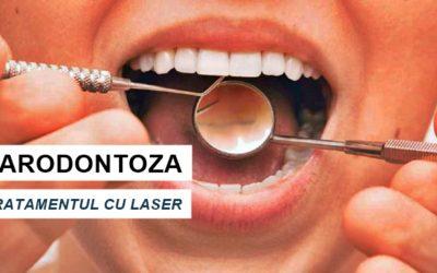 Boala parodontolă se poate trata! Simptome, cauză, soluție