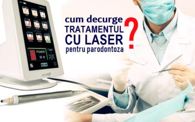 Ce presupune și cum decurge tratamentul cu laser pentru parodontoză