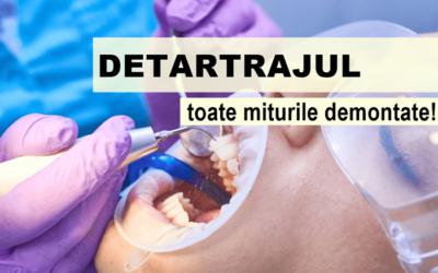 Mituri despre detartraj. Legătura dintre tartru și parodontoză